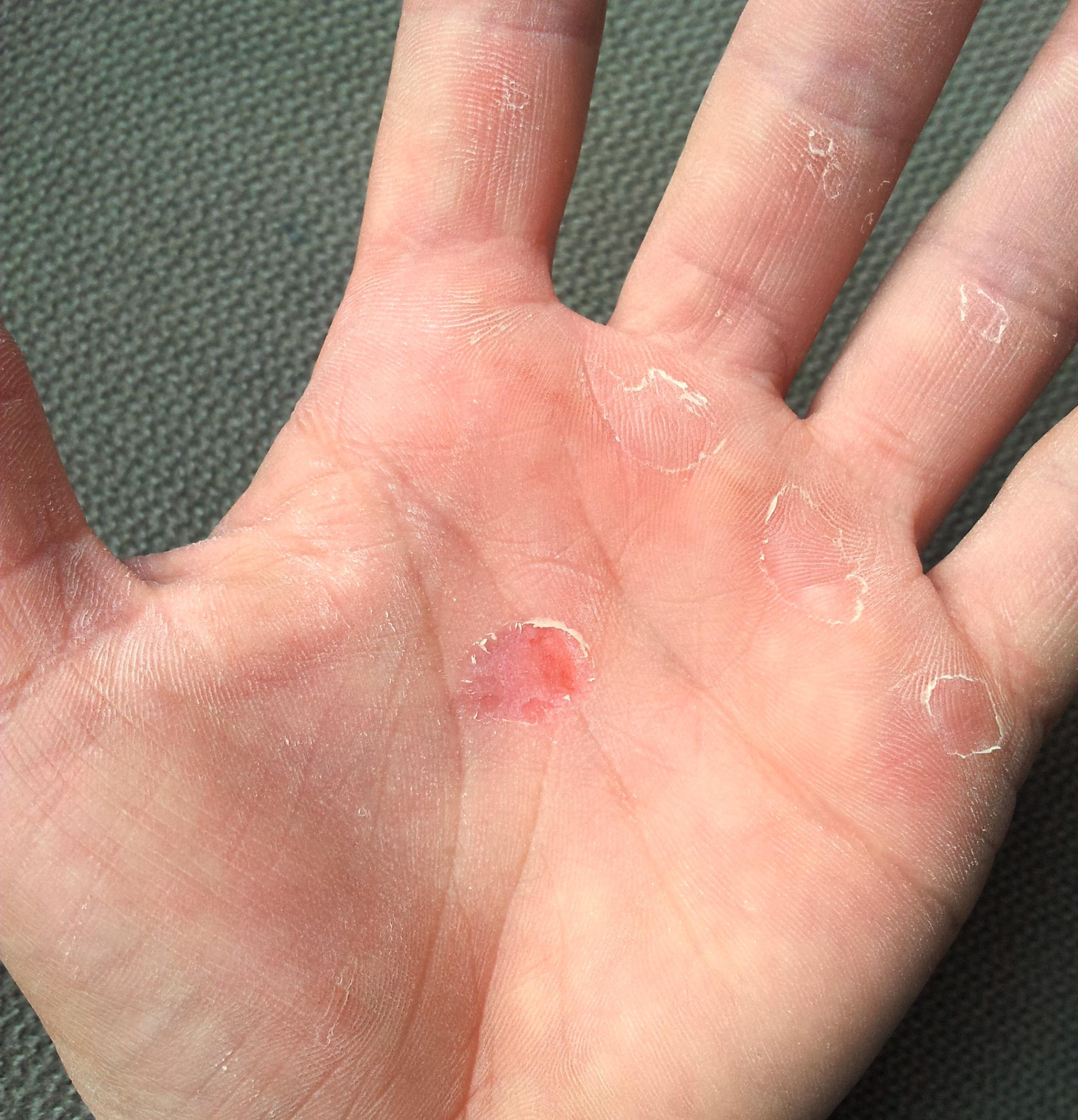 2012-07-18_trapeze-hands2